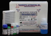 Measles IgG ELISA kit